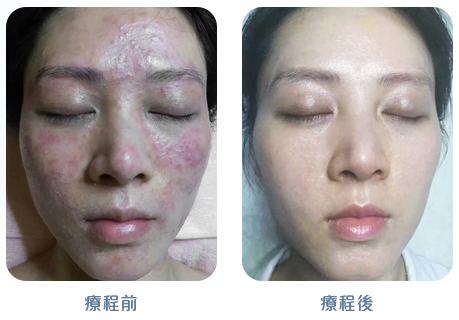 謝燕 case-USE
