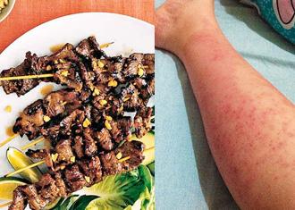暗瘡濕疹敏感炎症