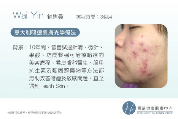 3個月擺脫纏擾10年的暗瘡問題│香港健康肌膚中心 - ATP再生體驗