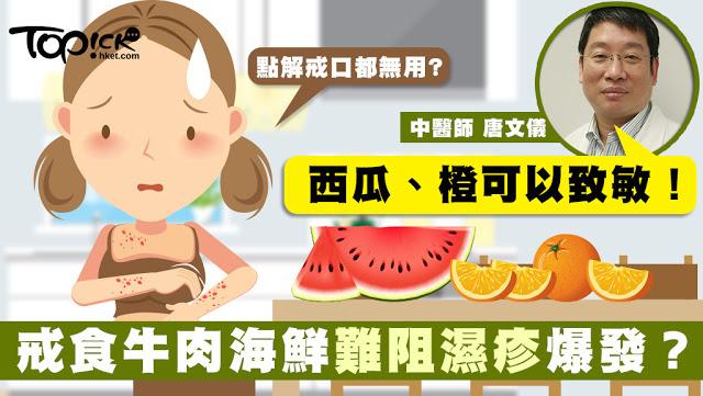 以為戒食牛肉、海鮮就可以治療濕疹?大錯特錯!- Health Skin