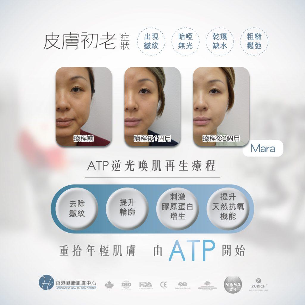 Health Skin ATP逆光喚肌再生療程_皮膚初老_回復年輕_缺水_鬆弛_衰老_皺紋