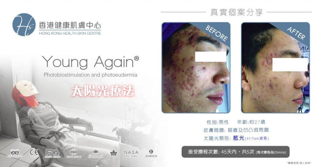 Health Skin_ATP再生系統_意大利暗瘡肌膚光學療法」